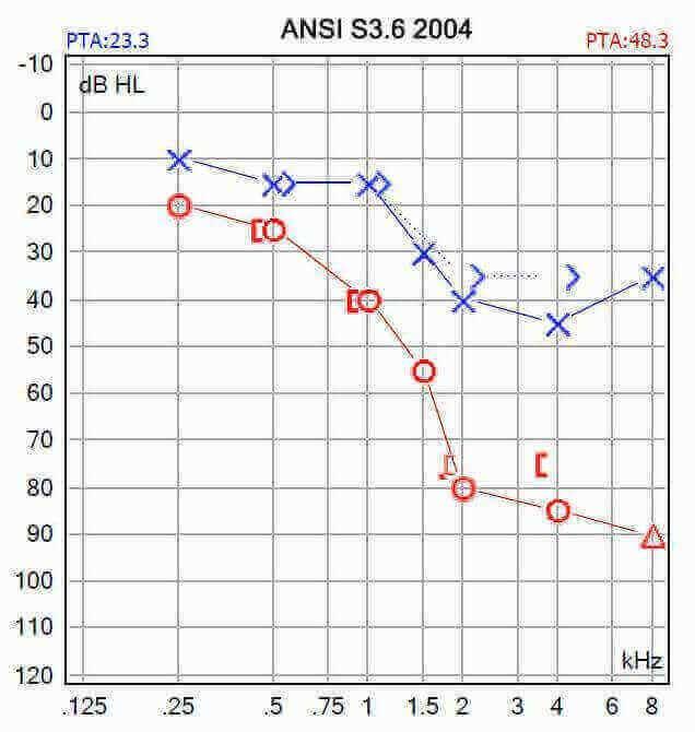 audiograma asimetrica