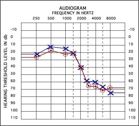 audiograma exemplu